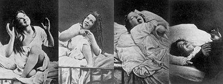 Women suffering from hysteria (Photo Credit: Wikipedia)